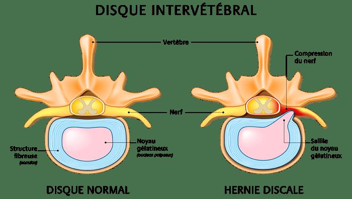 Schéma de l'hernie discale